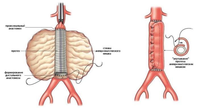 Аневризма подколенной артерии