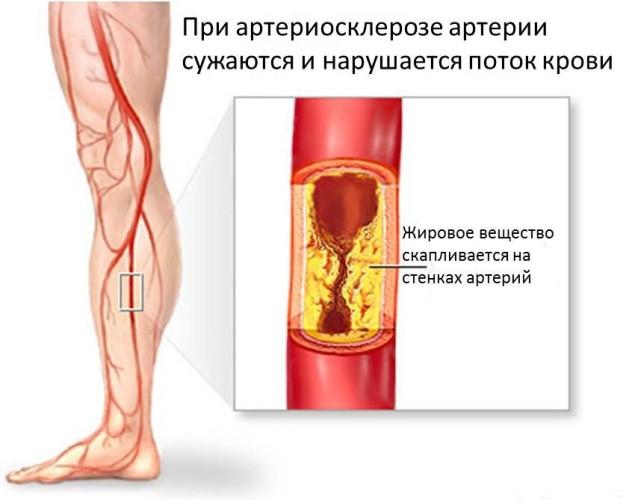 Артериальные нарушения в икрах