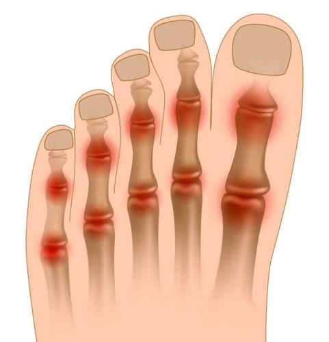 Болит сустав большого пальца на ноге чем лечить причины боли методы лечения