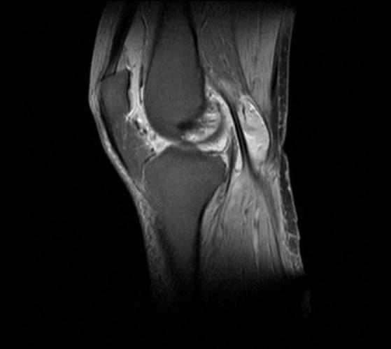 Боль в коленях при ходьбе по лестнице