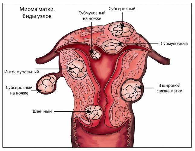 Болит матка секса