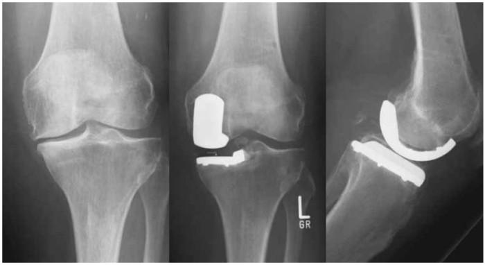 Остеофиты в коленном суставе
