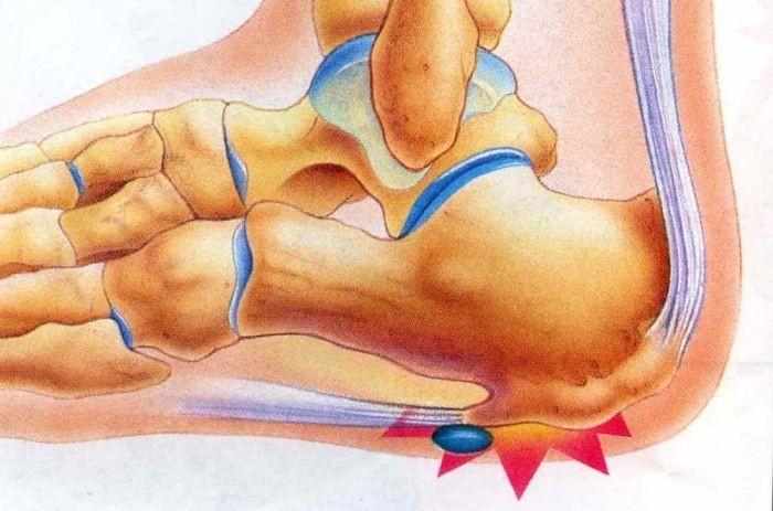 Реактивный артрит пятки