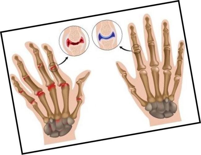 Ризартроз пальцев рук
