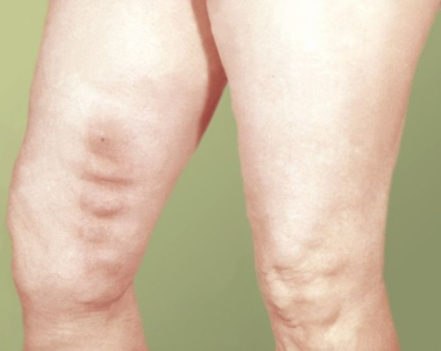 Тромбоз кожных вен ног