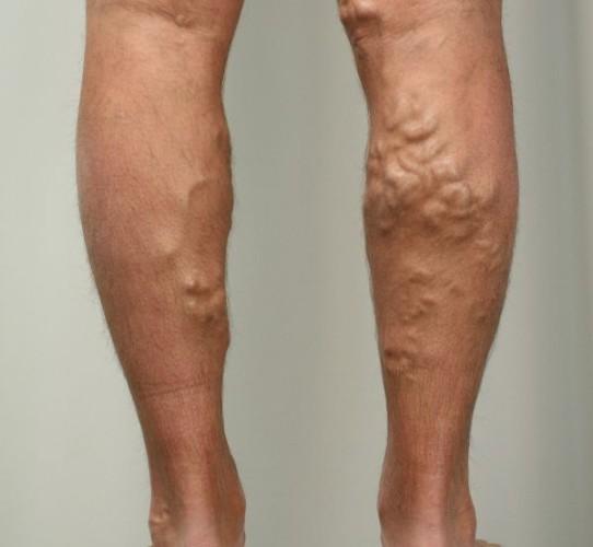 Опасна ли операция на ногах от варикоза при беременности