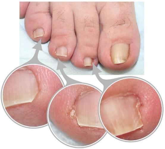 Мицелий гриба лечение ногтей