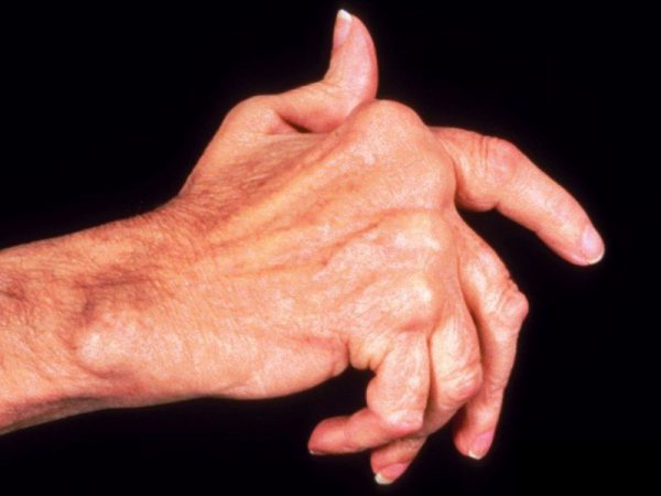 Заболевания суставов кисти