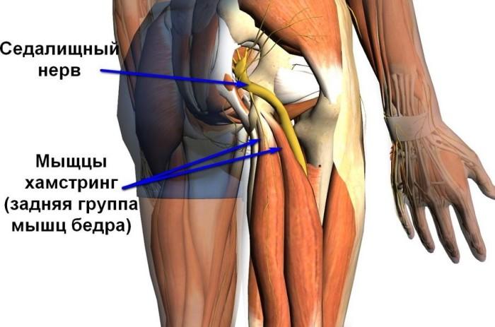Защемление седалищной мышцы