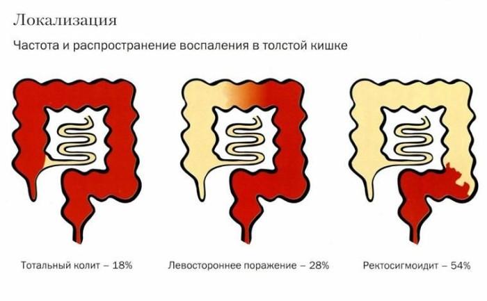 Боль сигмовидной кишки