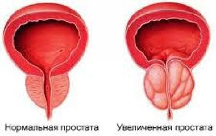 Геморроидальные узлы кашель