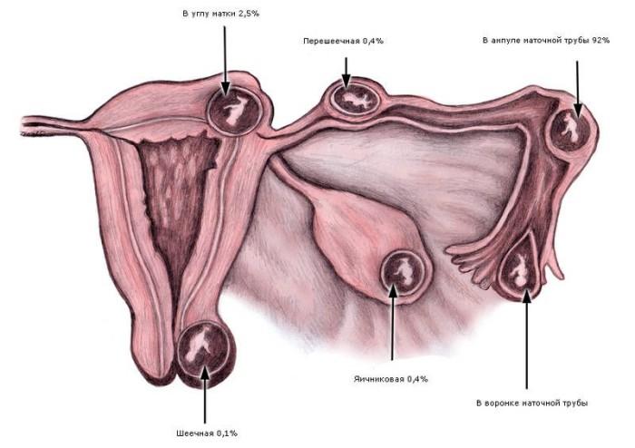 Трубная беременность