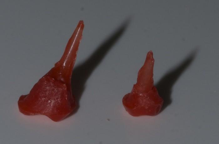 Депульпированный зуб