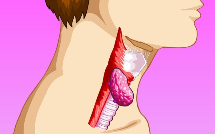 Онкология горла