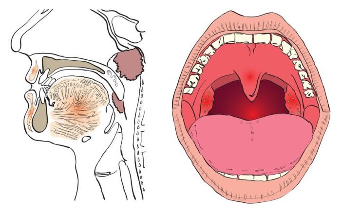 Рак в горле