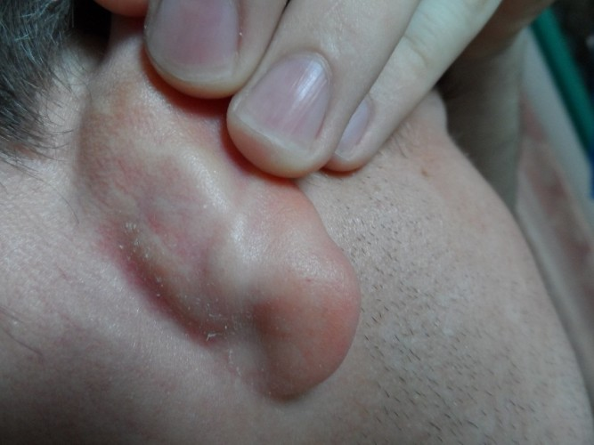 Атерома уха