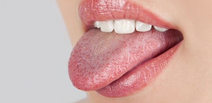 Болит язык