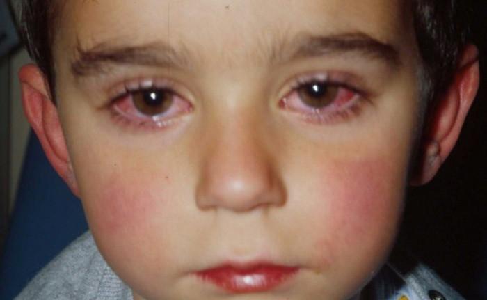 Рожистое воспаленеие глаза