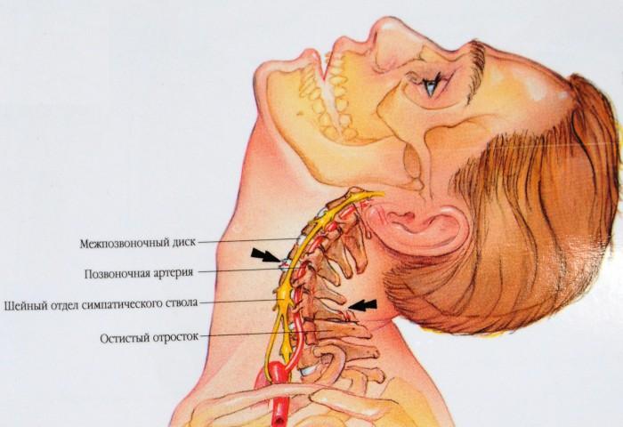 Может ли болеть лицо из за шеи