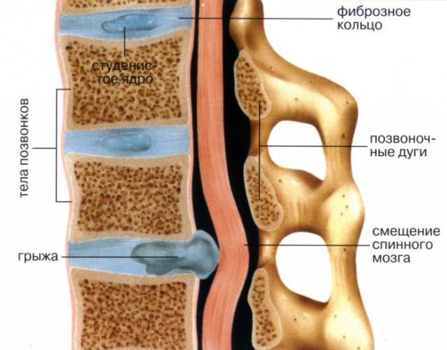 Тонический синдром грудного отдела
