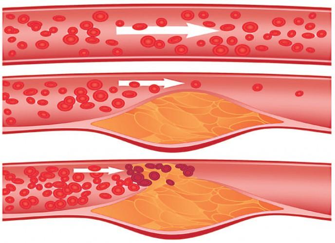 Атеросклерозе сосудов