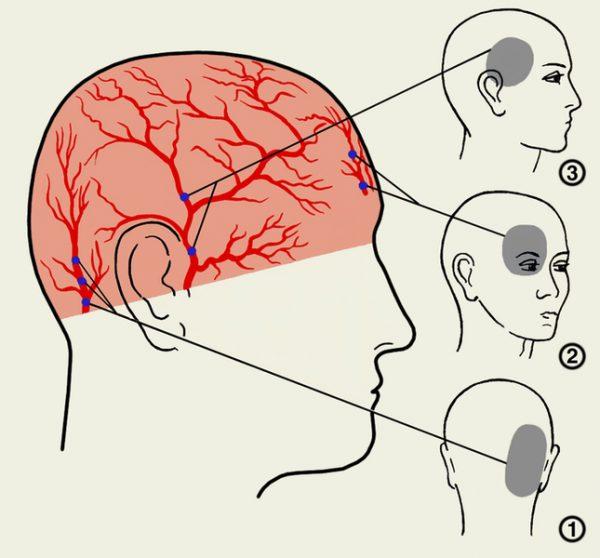 Болит голова справа
