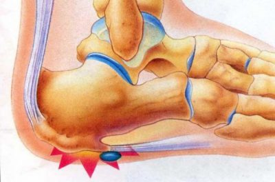 Анкилозирующий спондилоартрит пятки