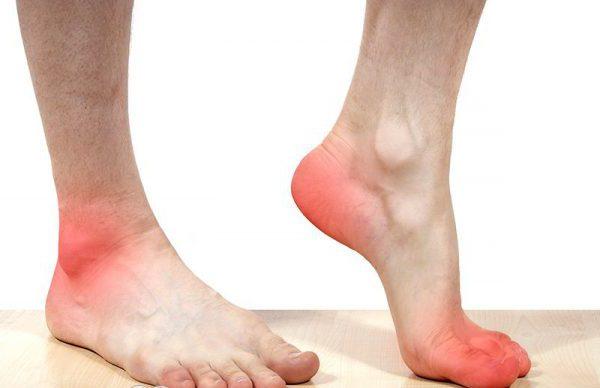 Желчь в лечении косточек ног