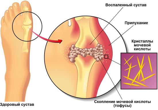 если лечение. в делать коленях: болит. причины, Боли Что