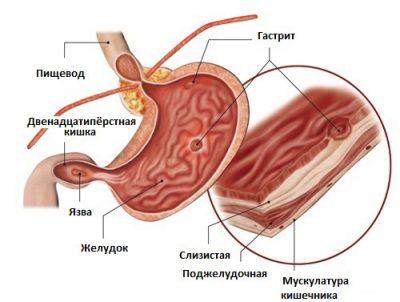 Повреждения слизистой желудка