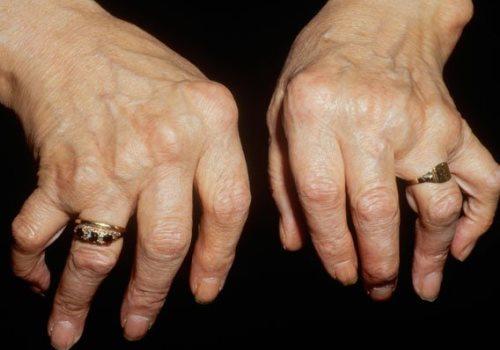 Боль в кончиках пальцев - Люблю жить!