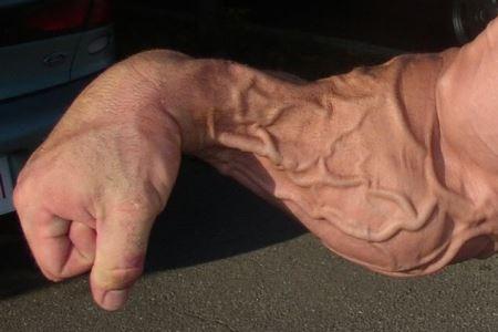 рука с венами