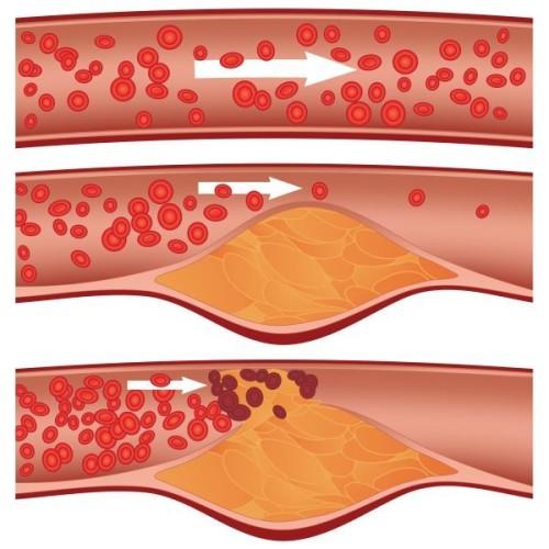 Атеросклероз суставов рук