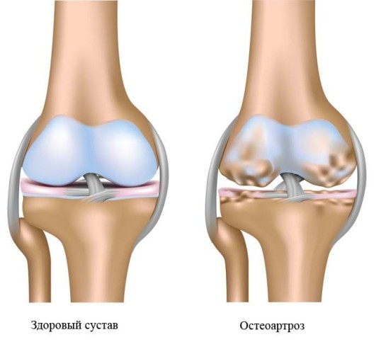 Болит коленный сустав при спуске с лестницы видео гимнастика для суставов скачать