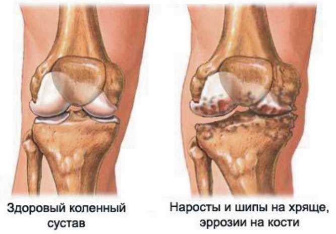 Болит колено при ходьбе вниз каие паразиты разрушают суставы