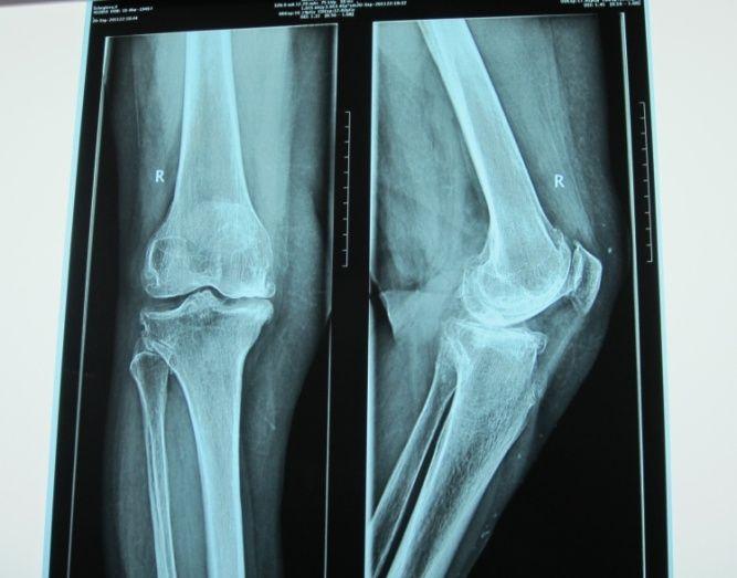 При спуске с лестницы болит коленный сустав