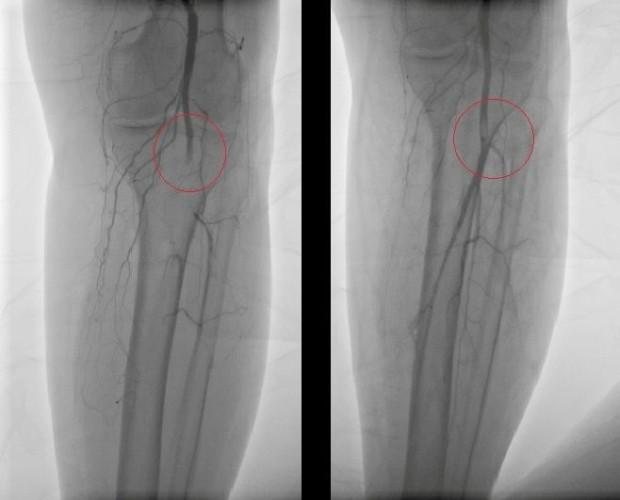 Лечение сосудов колена