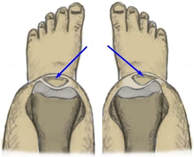 Менископатия колена