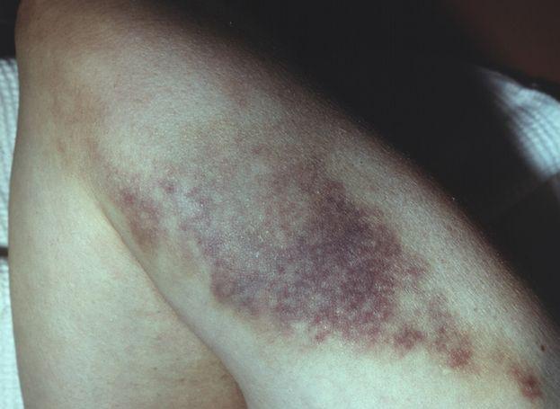Боли� нога в бед�е п�и�ин� возникновения и ле�ение