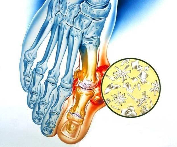 Почему болит сустав большого пальца на ноге