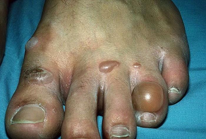 Пальцы ног сахарный диабет