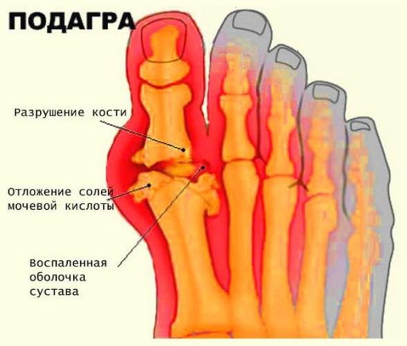 Подагра пальца ноги