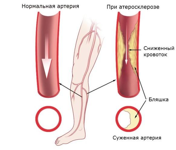 Поражение артерий ног