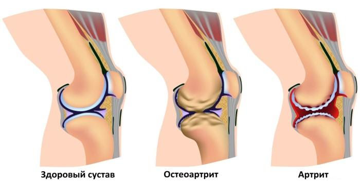 Колено болит и печет нагрузочная артралгия коленного сустава