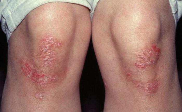 Псориаз колена