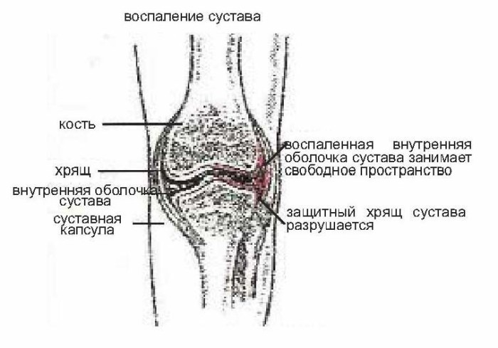 Разрушение хрящевой ткани сустава