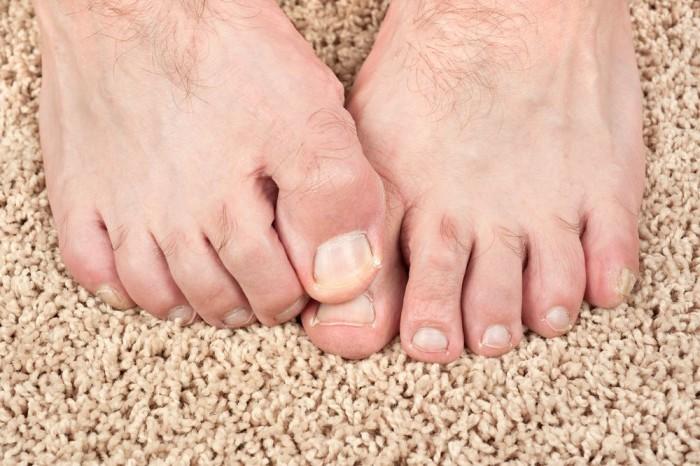 Сосудистые нарушения в пальцах ног