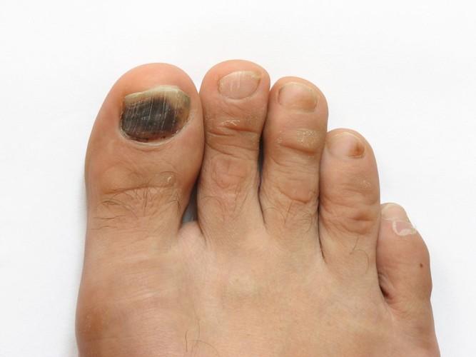 Травма ногтя пальца ноги