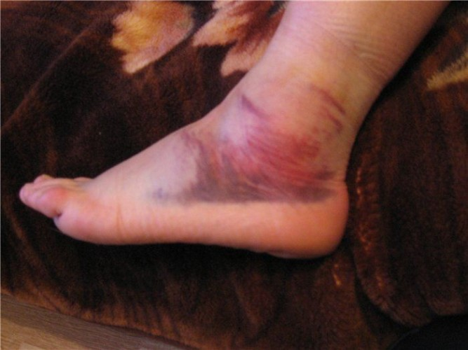 Травма щиколотки
