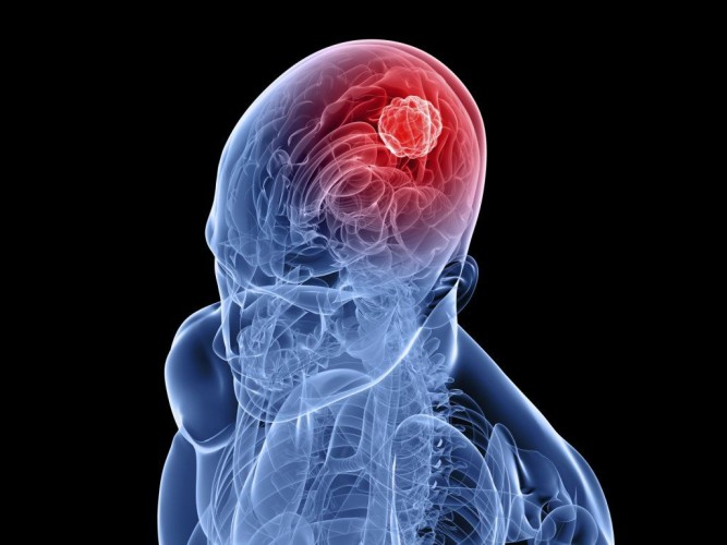 Пониженная температура тела и головная боль || Головная боль и пониженная температура тела